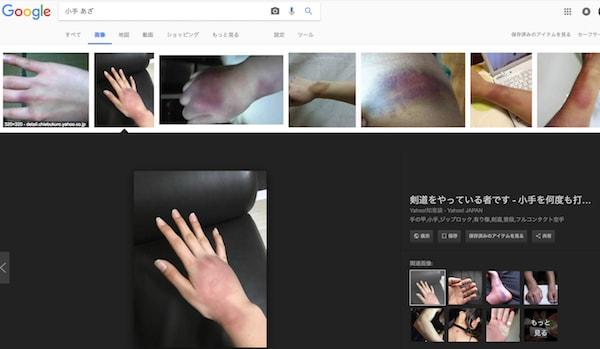 剣道の小手が痛いと思ったらこの対処法が効果あり